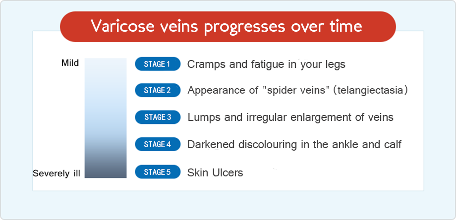 Varicose veins frequently progress and worsen over time